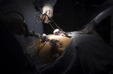 תביעת רשלנות רפואית בניתוח קיצור קיבה