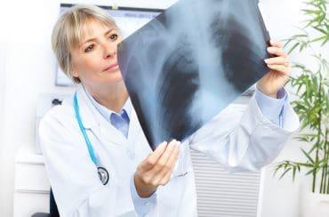 רשלנות בפענוח צילום רנטגן