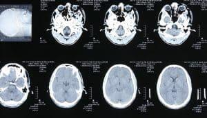 הזנחת מטופלת לאחר טיפול צנתורי במוח