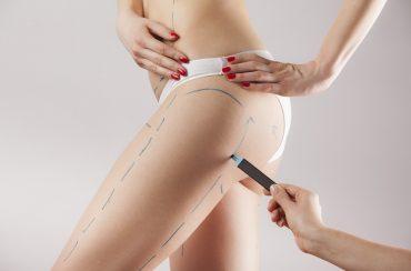 רשלנות בביצוע ניתוח שאיבת שומן