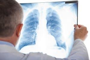 איחור באבחון סרטן ריאות