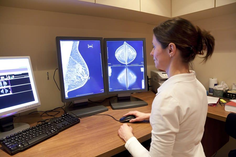 איחור באבחון סרטן השד
