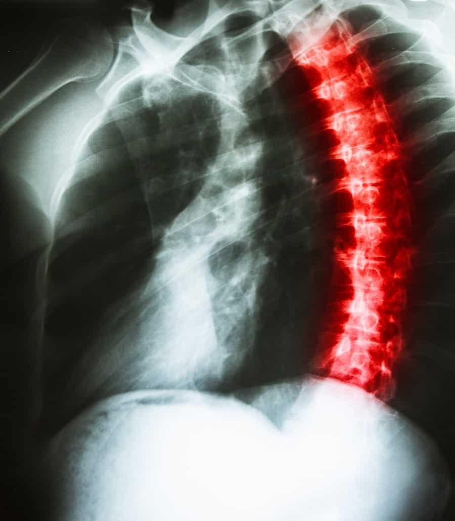 רשלנות רפואית בניתוח עקמת עמוד שדרה