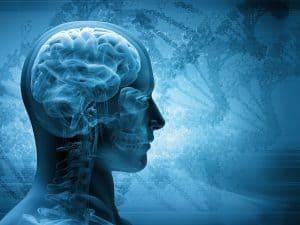 כשל באבחון שבץ מוחי