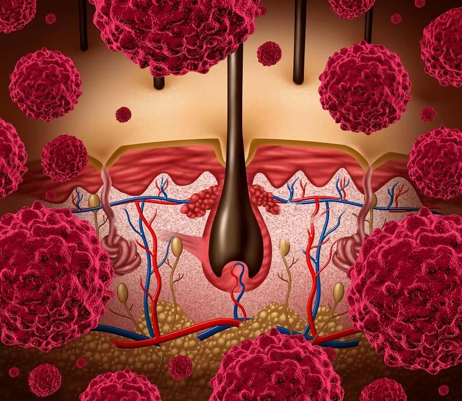 תביעת רשלנות רפואית באבחון מלנומה