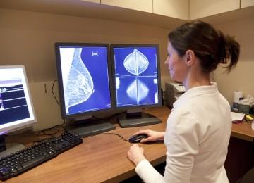 איחור באבחון סרטן שד