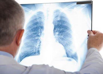 בניהול המשרד: תובענה בעניין איחור באבחון סרטן ריאות