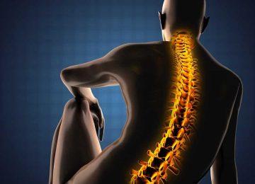 רשלנות בביצוע ניתוח כריתה של נגע סרטני בגב
