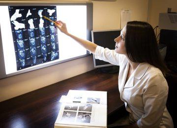 איחור בגילוי סרטן ריאה