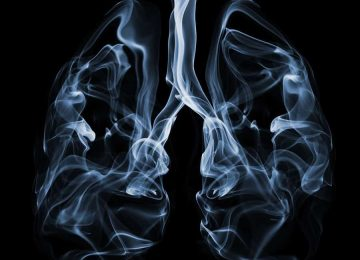 תביעה בעקבות איחור באבחון סרטן ריאות