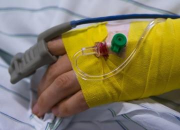 טיפול כושל בהסרת מלנומה