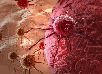 האבחנה נשכחה במגירה – הסרטן התפשט בגוף