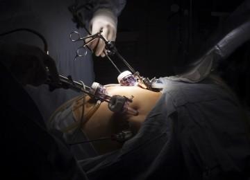 תביעת רשלנות רפואית בניתוח קיצור קיבה נגד וולפסון עקב מות אשה