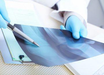 מעקב רשלני אחר תוצאות בדיקות רפואיות