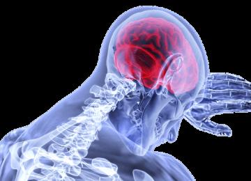 סובל מפגיעה כתוצאה מאירוע מוחי שלא טופל באופן סביר
