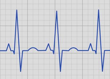 אשה בת 31 מתעלפת פעמיים לאחר לידתה, לא זוכה להתייחסות מתאימה של הצוות הרפואי, ומתמוטטת עקב דום לב שבוע לאחר  מכן